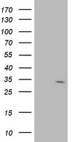 SDR9C7 Antibody - HEK293T cells were transfected with the pCMV6-ENTRY control (Left lane) or pCMV6-ENTRY SDR9C7 (Right lane) cDNA for 48 hrs and lysed. Equivalent amounts of cell lysates (5 ug per lane) were separated by SDS-PAGE and immunoblotted with anti-SDR9C7.