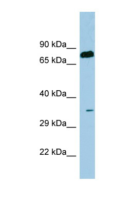 SDS antibody LS-C107514 Western blot of Fetal Thymus lysate.  This image was taken for the unconjugated form of this product. Other forms have not been tested.