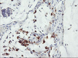 IHC of paraffin-embedded Adenocarcinoma of Human colon tissue using anti-SDS mouse monoclonal antibody. (Heat-induced epitope retrieval by 10mM citric buffer, pH6.0, 100C for 10min).