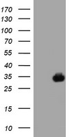 HEK293T cells were transfected with the pCMV6-ENTRY control (Left lane) or pCMV6-ENTRY SDS (Right lane) cDNA for 48 hrs and lysed. Equivalent amounts of cell lysates (5 ug per lane) were separated by SDS-PAGE and immunoblotted with anti-SDS.