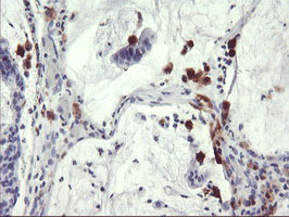 IHC of paraffin-embedded Adenocarcinoma of Human colon tissue using anti-SDS mouse monoclonal antibody.