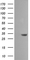 HEK293T cells were transfected with the pCMV6-ENTRY control (Left lane) or pCMV6-ENTRY SDSL (Right lane) cDNA for 48 hrs and lysed. Equivalent amounts of cell lysates (5 ug per lane) were separated by SDS-PAGE and immunoblotted with anti-SDSL.