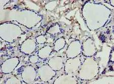 SDSL / Serine Dehydratase-Like Antibody - Immunohistochemistry of paraffin-embedded human thyroid tissue using antibody at dilution of 1:100.