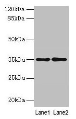 SDSL / Serine Dehydratase-Like Antibody - Western blot All lanes: SDSL antibody at 4µg/ml Lane 1: HepG2 whole cell lysate Lane 2: Mouse liver tissue Secondary Goat polyclonal to rabbit IgG at 1/10000 dilution Predicted band size: 35 kDa Observed band size: 35 kDa
