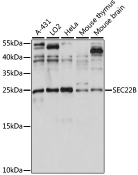 SEC22B Antibody - Western blot analysis of extracts of various cell lines, using SEC22B antibody at 1:1000 dilution. The secondary antibody used was an HRP Goat Anti-Rabbit IgG (H+L) at 1:10000 dilution. Lysates were loaded 25ug per lane and 3% nonfat dry milk in TBST was used for blocking. An ECL Kit was used for detection and the exposure time was 60s.