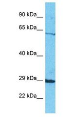 SEL1L2 antibody Western Blot of HepG2. Antibody dilution: 1 ug/ml.  This image was taken for the unconjugated form of this product. Other forms have not been tested.