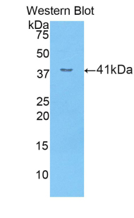 Western blot of recombinant SELE / CD62E / E-selectin.  This image was taken for the unconjugated form of this product. Other forms have not been tested.