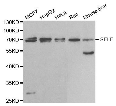 SELE / CD62E / E-selectin Antibody - Western blot analysis of extracts of various cell lines, using SELE antibody.