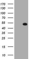 HEK293T cells were transfected with the pCMV6-ENTRY control (Left lane) or pCMV6-ENTRY SELENBP1 (Right lane) cDNA for 48 hrs and lysed. Equivalent amounts of cell lysates (5 ug per lane) were separated by SDS-PAGE and immunoblotted with anti-SELENBP1.