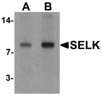 SELK / Selenoprotein K Antibody - Western blot analysis of SELK in A20 cell lysate with SELK antibody at (A) 1 and (B) 2 ug/ml.