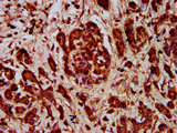 Immunohistochemistry Dilution at 1:400 and staining in paraffin-embedded human pancreatic cancer performed on a Leica BondTM system. After dewaxing and hydration, antigen retrieval was mediated by high pressure in a citrate buffer (pH 6.0). Section was blocked with 10% normal Goat serum 30min at RT. Then primary antibody (1% BSA) was incubated at 4°C overnight. The primary is detected by a biotinylated Secondary antibody and visualized using an HRP conjugated SP system.