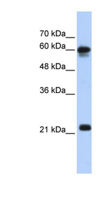 SEMA4F antibody LS-C111097 Western blot of Transfected 293T cell lysate.  This image was taken for the unconjugated form of this product. Other forms have not been tested.