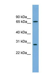 SEMG2 Antibody - SEMG2 antibody Western blot of COLO205 cell lysate. This image was taken for the unconjugated form of this product. Other forms have not been tested.