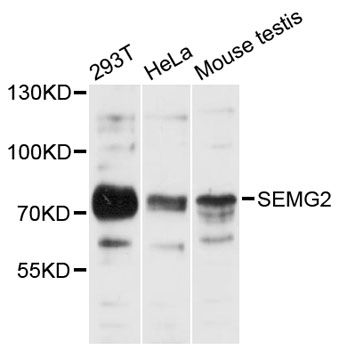 SEMG2 Antibody - Western blot analysis of extracts of various cell lines, using SEMG2 antibody at 1:3000 dilution. The secondary antibody used was an HRP Goat Anti-Rabbit IgG (H+L) at 1:10000 dilution. Lysates were loaded 25ug per lane and 3% nonfat dry milk in TBST was used for blocking. An ECL Kit was used for detection and the exposure time was 30s.