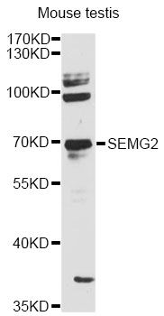 SEMG2 Antibody - Western blot analysis of extracts of mouse testis, using SEMG2 antibody at 1:3000 dilution. The secondary antibody used was an HRP Goat Anti-Rabbit IgG (H+L) at 1:10000 dilution. Lysates were loaded 25ug per lane and 3% nonfat dry milk in TBST was used for blocking. An ECL Kit was used for detection and the exposure time was 90s.