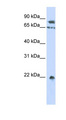 SENP1 antibody Western blot of HepG2 cell lysate. This image was taken for the unconjugated form of this product. Other forms have not been tested.