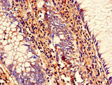 Immunohistochemistry of paraffin-embedded human colon cancer using SENP1 Antibody at dilution of 1:100