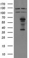 HEK293T cells were transfected with the pCMV6-ENTRY control (Left lane) or pCMV6-ENTRY SENP2 (Right lane) cDNA for 48 hrs and lysed. Equivalent amounts of cell lysates (5 ug per lane) were separated by SDS-PAGE and immunoblotted with anti-SENP2.