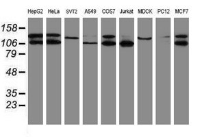 Western blot of extracts (35 ug) from 9 different cell lines by using g anti-SENP2 monoclonal antibody (HepG2: human; HeLa: human; SVT2: mouse; A549: human; COS7: monkey; Jurkat: human; MDCK: canine; PC12: rat; MCF7: human).