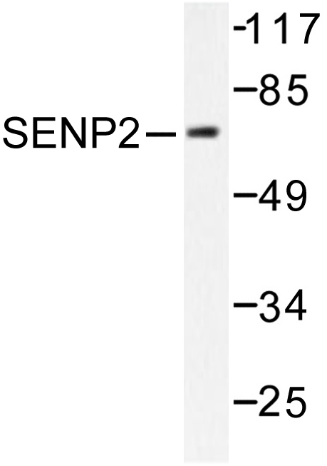 Western blot of SENP2 (L512) pAb in extracts from MDA-MB-435 cells.