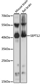 SEPT12 / Septin 12 Antibody - Western blot analysis of extracts of various cell lines, using SEPT12 antibody at 1:1000 dilution. The secondary antibody used was an HRP Goat Anti-Rabbit IgG (H+L) at 1:10000 dilution. Lysates were loaded 25ug per lane and 3% nonfat dry milk in TBST was used for blocking. An ECL Kit was used for detection and the exposure time was 1s.
