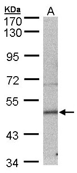 Sample (30 ug of whole cell lysate). A: MOLT4 . 7.5% SDS PAGE. Septin 7 / SEPT7 antibody diluted at 1:500