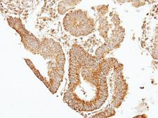 SEPT7 / Septin 7 Antibody - IHC of paraffin-embedded GASTRIC CA using 39331 antibody at 1:100 dilution.