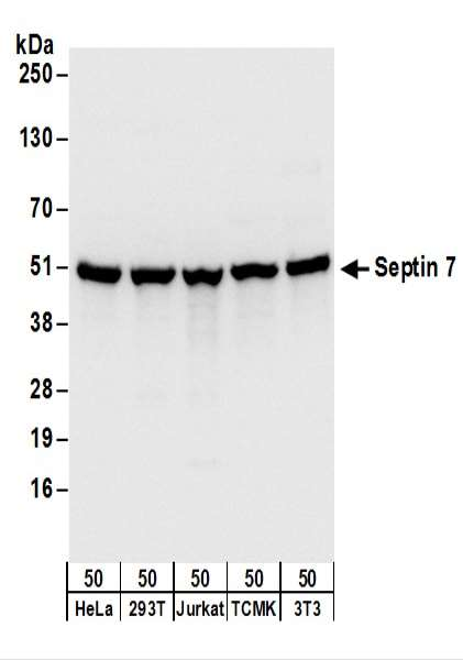 Detection of Human and Mouse Septin 7 by Western Blot. Samples: Whole cell lysate (50 ug) from HeLa, 293T, Jurkat, mouse TCMK-1, and mouse NIH3T3 cells. Antibodies: Affinity purified rabbit anti-Septin 7 antibody used for WB at 0.1 ug/ml. Detection: Chemiluminescence with an exposure time of 1 second.