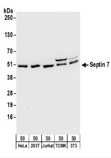 Detection of Human and Mouse Septin 7 by Western Blot. Samples: Whole cell lysate (50 ug) from HeLa, 293T, Jurkat, mouse TCMK-1, and mouse NIH3T3 cells. Antibodies: Affinity purified rabbit anti-Septin 7 antibody used for WB at 0.1 ug/ml. Detection: Chemiluminescence with an exposure time of 30 seconds.