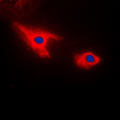 Immunofluorescent analysis of Septin 7 staining in HepG2 cells. Formalin-fixed cells were permeabilized with 0.1% Triton X-100 in TBS for 5-10 minutes and blocked with 3% BSA-PBS for 30 minutes at room temperature. Cells were probed with the primary antibody in 3% BSA-PBS and incubated overnight at 4 C in a humidified chamber. Cells were washed with PBST and incubated with a DyLight 594-conjugated secondary antibody (red) in PBS at room temperature in the dark. DAPI was used to stain the cell nuclei (blue).