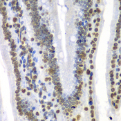 Immunohistochemistry of paraffin-embedded mouse Intestine.