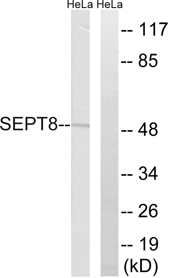 Western blot analysis of lysates from HeLa cells, using SEPT8 Antibody. The lane on the right is blocked with the synthesized peptide.