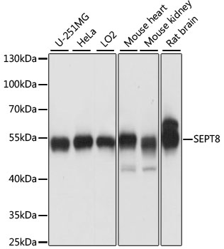 Western blot analysis of extracts of various cell lines, using SEPT8 antibody at 1:1000 dilution. The secondary antibody used was an HRP Goat Anti-Rabbit IgG (H+L) at 1:10000 dilution. Lysates were loaded 25ug per lane and 3% nonfat dry milk in TBST was used for blocking. An ECL Kit was used for detection and the exposure time was 10s.