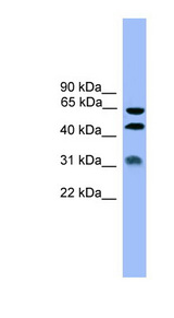 SERPINA4 / Kallistatin antibody LS-C116931 Western blot of MCF7 cell lysate.  This image was taken for the unconjugated form of this product. Other forms have not been tested.