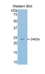 Western blot of recombinant SERPINA6 / CBG.  This image was taken for the unconjugated form of this product. Other forms have not been tested.