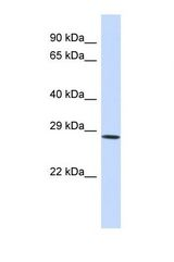 Western blot of Human HeLa. SERPINA6 antibody dilution 1.0 ug/ml.  This image was taken for the unconjugated form of this product. Other forms have not been tested.
