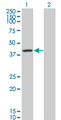 Western Blot analysis of SERPINA6 expression in transfected 293T cell line by SERPINA6 monoclonal antibody (M01), clone 1F11.Lane 1: SERPINA6 transfected lysate(45.141 KDa).Lane 2: Non-transfected lysate.