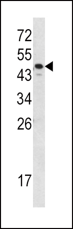 Western blot of SERPINA7 Antibody in MDA-MB231 cell line lysates (35 ug/lane). SERPINA7 (arrow) was detected using the purified antibody.