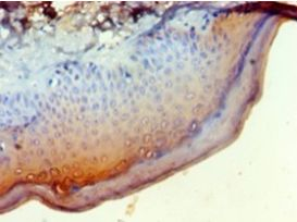 Immunohistochemistry of paraffin-embedded human skin using antibody at 1:100 dilution.  This image was taken for the unconjugated form of this product. Other forms have not been tested.