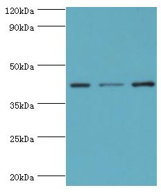 Western blot. All lanes: Leukocyte elastase inhibitor antibody at 4 ug/ml. Lane 1: MCF-7 whole cell lysate. Lane 2: HeLa whole cell lysate. Lane 3: HepG2 whole cell lysate. secondary Goat polyclonal to rabbit at 1:10000 dilution. Predicted band size: 43 kDa. Observed band size: 43 kDa.