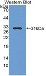 Western blot of recombinant SERPINB1.