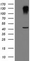HEK293T cells were transfected with the pCMV6-ENTRY control (Left lane) or pCMV6-ENTRY SERPINB1 (Right lane) cDNA for 48 hrs and lysed. Equivalent amounts of cell lysates (5 ug per lane) were separated by SDS-PAGE and immunoblotted with anti-SERPINB1.