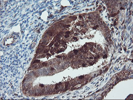 IHC of paraffin-embedded Adenocarcinoma of Human endometrium tissue using anti-SERPINB1 mouse monoclonal antibody. (Heat-induced epitope retrieval by 10mM citric buffer, pH6.0, 100C for 10min).