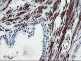 IHC of paraffin-embedded Human prostate tissue using anti-SERPINB1 mouse monoclonal antibody. (Heat-induced epitope retrieval by 10mM citric buffer, pH6.0, 100C for 10min).