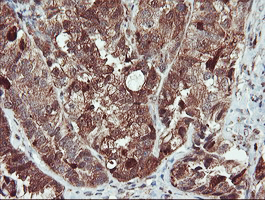 IHC of paraffin-embedded Adenocarcinoma of Human ovary tissue using anti-SERPINB1 mouse monoclonal antibody.