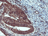 IHC of paraffin-embedded Adenocarcinoma of Human endometrium tissue using anti-SERPINB1 mouse monoclonal antibody.