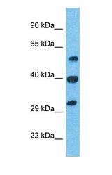 Western blot of ILEU Antibody with human Stomach Tumor lysate.  This image was taken for the unconjugated form of this product. Other forms have not been tested.