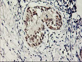IHC of paraffin-embedded Adenocarcinoma of Human breast tissue using anti-SERPINB13 mouse monoclonal antibody.