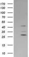 SERPINB2 / PAI-2 Antibody - HEK293T cells were transfected with the pCMV6-ENTRY control (Left lane) or pCMV6-ENTRY SERPINB2 (Right lane) cDNA for 48 hrs and lysed. Equivalent amounts of cell lysates (5 ug per lane) were separated by SDS-PAGE and immunoblotted with anti-SERPINB2.