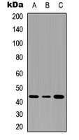 SERPINB3+4 Antibody - Western blot analysis of Serpin B3/4 expression in THP1 (A); NS-1 (B); PC12 (C) whole cell lysates.